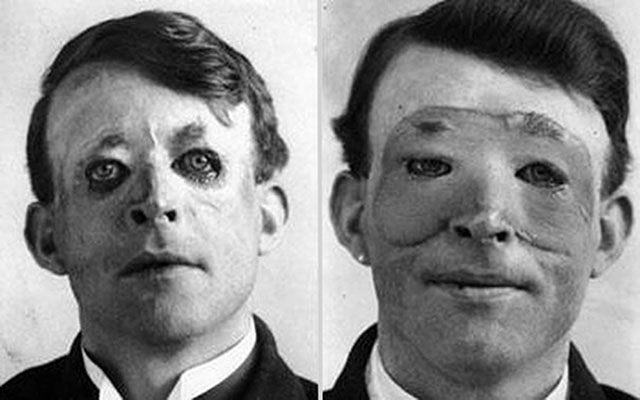 photos-historiques-walter-yeo-chirurgie-plastique-1917
